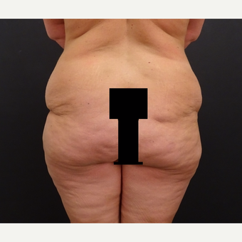 35-44 year old woman treated with Body Lift before 3246179