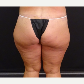 35-44 year old woman treated with Body Lift after 3246179