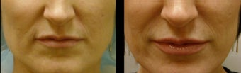 Juvederm for Lip Augmentation before 981987