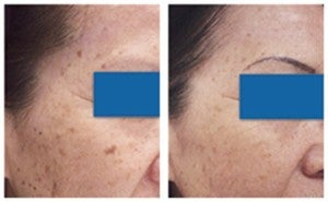 Age spot removal with laser therapy before 6612