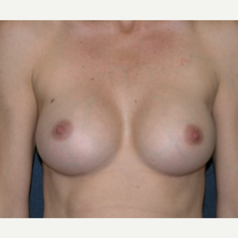 35-44 year old woman treated with Breast Implants after 3455373