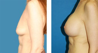 51 Year Old Woman, Breast Augmentation with Silicone Implants after 1040081