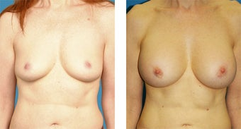 51 Year Old Woman, Breast Augmentation with Silicone Implants before 1040081