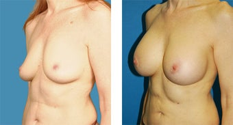 51 Year Old Woman, Breast Augmentation with Silicone Implants 1040081
