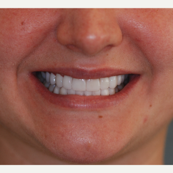 25-34 year old woman treated with Porcelain Veneers after 3507278
