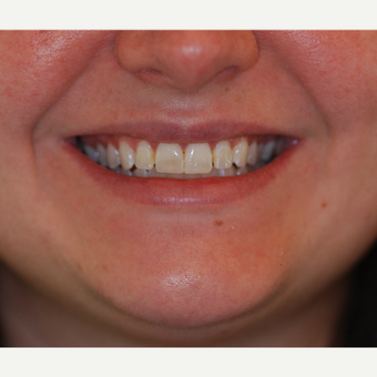 25-34 year old woman treated with Porcelain Veneers before 3507278
