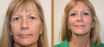 Mini Face Lift after 1254948