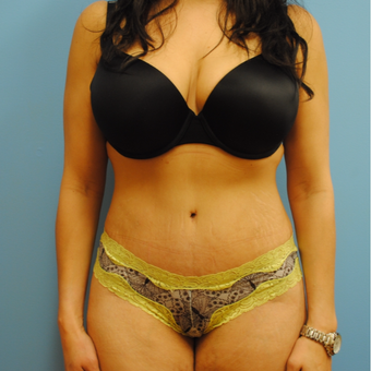 25-34 year old woman treated with Tummy Tuck after 3056130