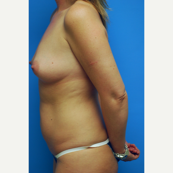 35 year old woman treated with Mommy Makeover with breast augmentation and liposuction of abdomen before 2932427