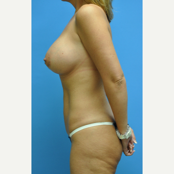 35 year old woman treated with Mommy Makeover with breast augmentation and liposuction of abdomen after 2932427