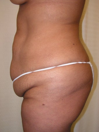 Extended Abdominoplasty, Tumescent Liposuction of Lower Flanks and Fat Grafting to Gluteals 1486370