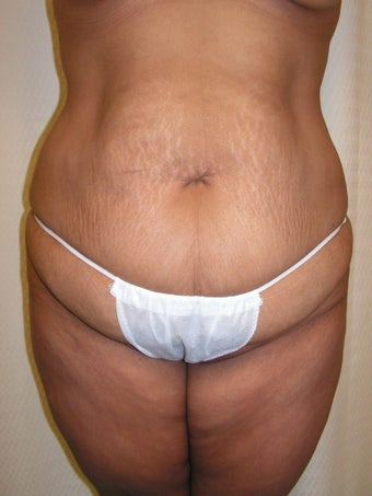 Extended Abdominoplasty, Tumescent Liposuction of Lower Flanks and Fat Grafting to Gluteals before 1486370