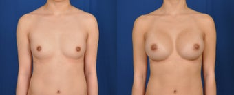 18-24 year old woman treated with Breast Augmentation before 3224968