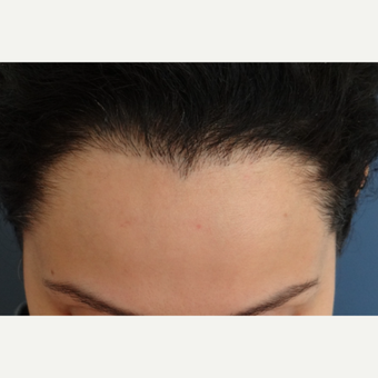 25-34 year old woman treated with Hair Transplant after 3066731