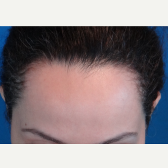 25-34 year old woman treated with Hair Transplant before 3066731