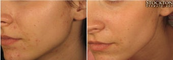 18-24 year old woman treated with LED Skin Treatment before 2103340