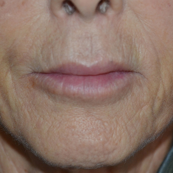 65-74 year old woman treated with Juvederm after 2835535