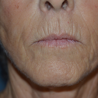 65-74 year old woman treated with Juvederm before 2835535