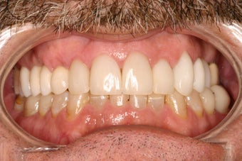 53 Year Old Male gets Smile Makeover after 844770
