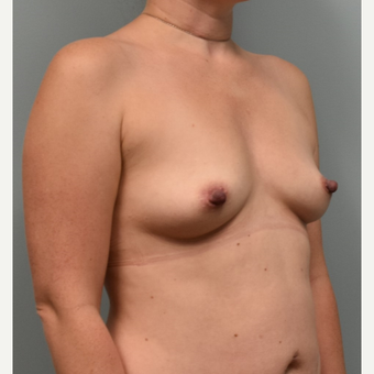 35-44 year old woman treated with Sientra Breast Implants before 3384914