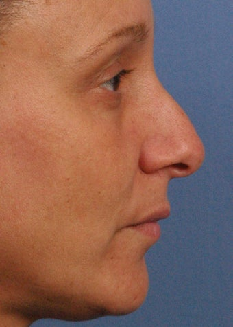 46 year old woman treated with Rhinoplasty before 2106843