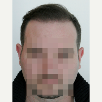 25-34 year old man treated with FUE Hair Transplant after 3258294
