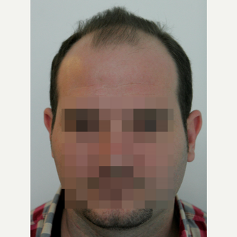25-34 year old man treated with FUE Hair Transplant before 3258294