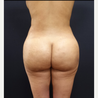 25-34 year old woman treated with Power-Assisted Liposuction (PAL) after 3267159