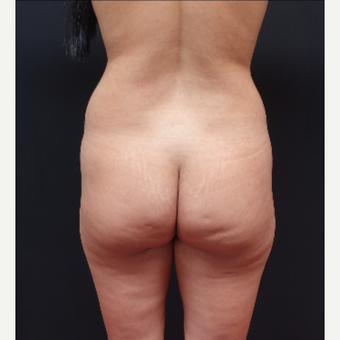 25-34 year old woman treated with Power-Assisted Liposuction (PAL) before 3267159