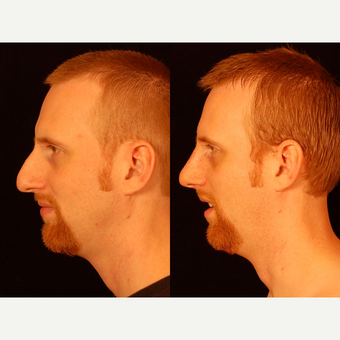 25-34 year old man treated with Rhinoplasty after 3659009