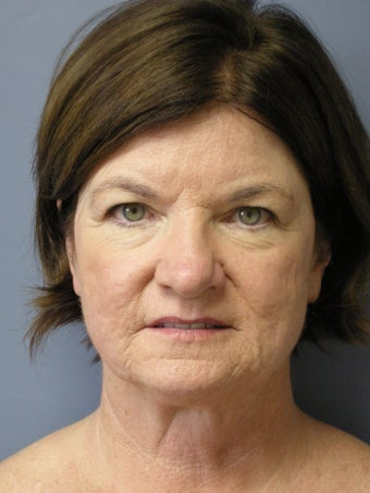 LiteLift™, Blepharoplasty, Temple Brow Lift on 62-year-old Woman before 1074453