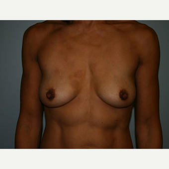 Breast Augmentation before 3561982