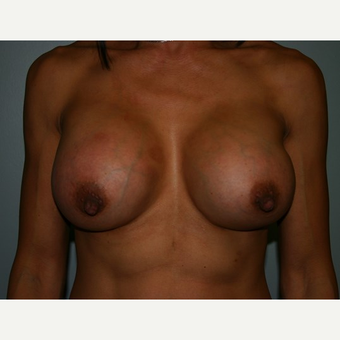 Breast Augmentation after 3561982