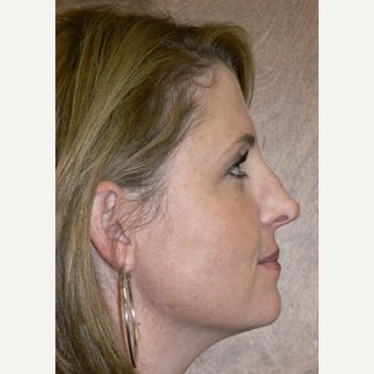 25-34 year old woman treated with Rhinoplasty before 3002119