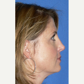 25-34 year old woman treated with Rhinoplasty after 3002119