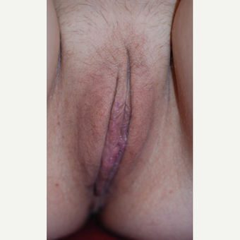 35-44 year old woman treated with Labiaplasty after 3621828