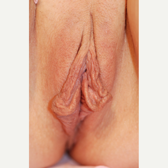 35-44 year old woman treated with Labiaplasty before 3621828