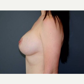 25-34 year old woman treated with Breast Lift after 3339114