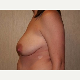 25-34 year old woman treated with Breast Lift before 3339114