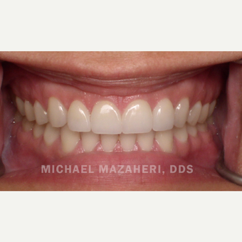 25-34 year old woman treated with Natural Porcelain Veneers