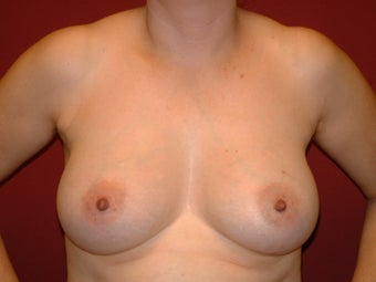Breast Augmentation after 683121