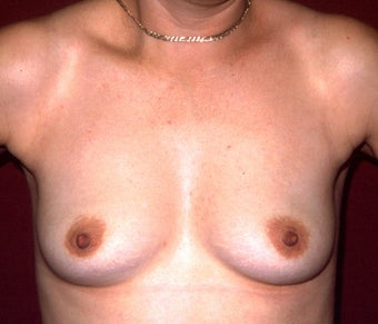 Breast Augmentation before 683121