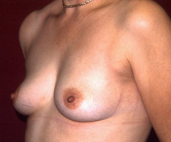 Breast Augmentation 683121