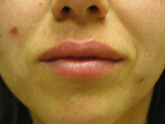 Lip Augmentation  after 344324