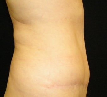 Abdominoplasty after 1097124