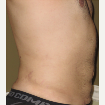 35-44 year old man treated with Vaser Liposuction after 3614609