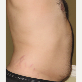 35-44 year old man treated with Vaser Liposuction before 3614609