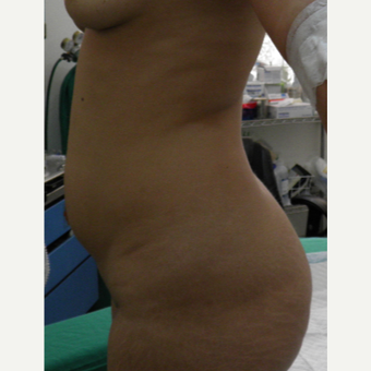 25-34 year old woman treated with Mini Tummy Tuck before 2721825