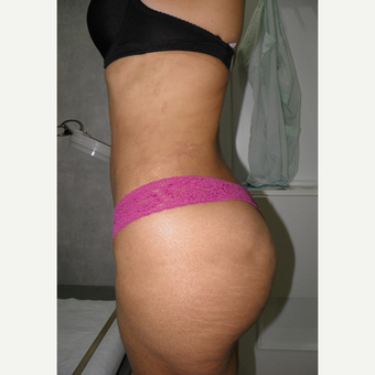 25-34 year old woman treated with Mini Tummy Tuck after 2721825