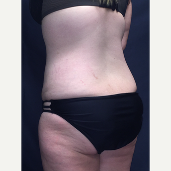 25-34 year old woman treated with SculpSure after 3725182